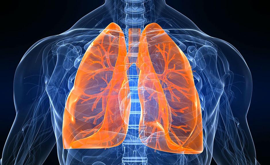 Smog-polmoni