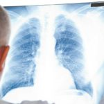 Malattie respiratorie tra fumo, inquinamento ed età avanzata