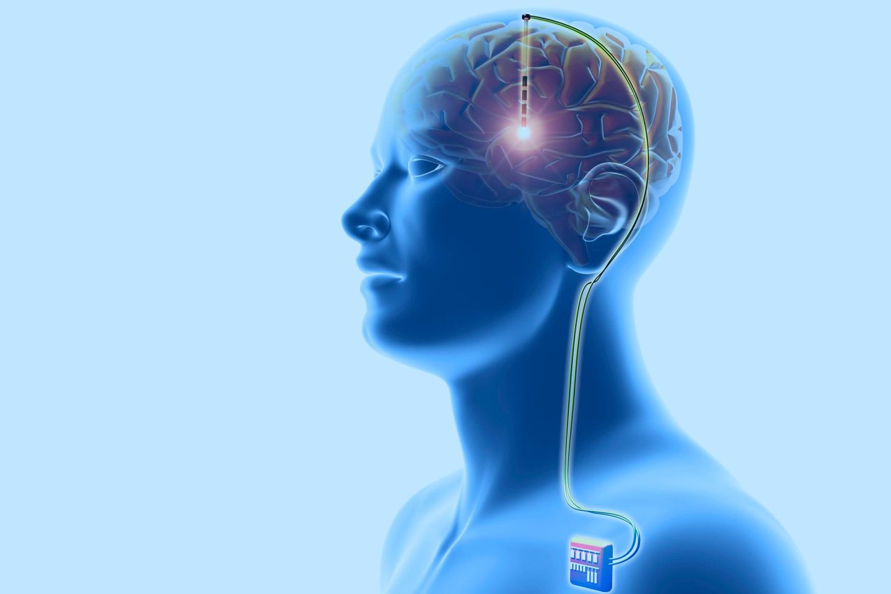 Depressione-Brain-Stimulation