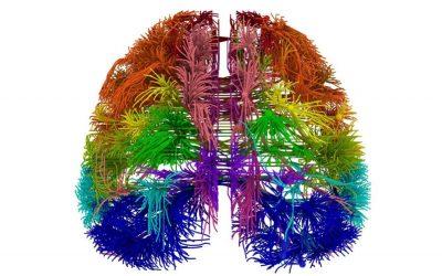 Cervello - connessioni